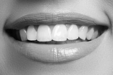 Gala Dent - Galerija osmeha